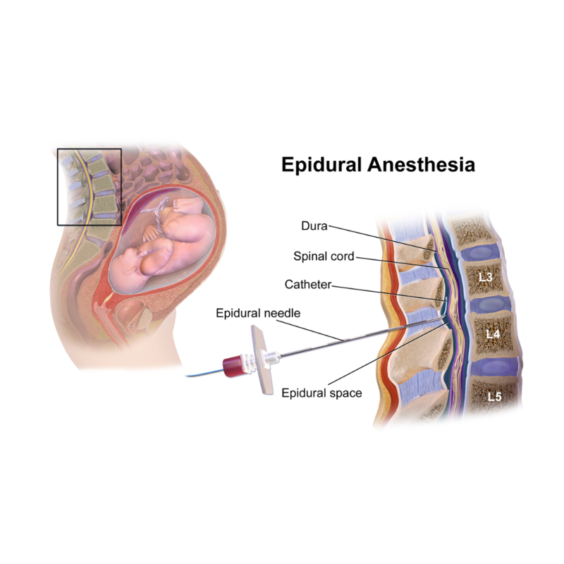 #common #questions #epidurals #labor Epidural Anesthesia During Labor - Common Questions About Epidurals